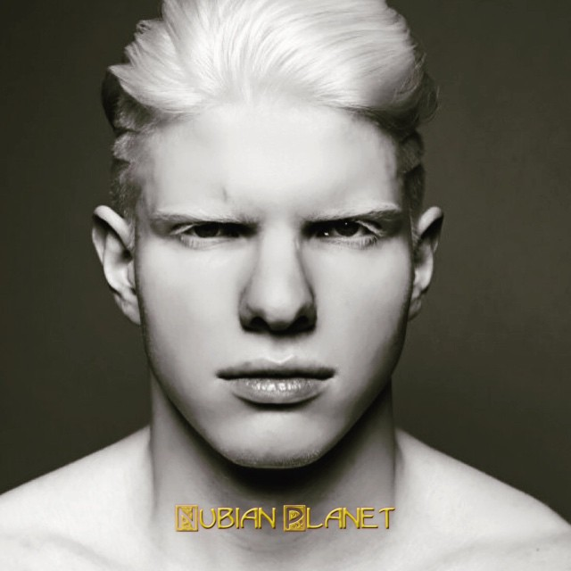 albinos who look white but are really fully black
